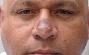 некрос носа
