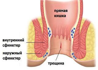 геморрой у женщин с кровью лечение