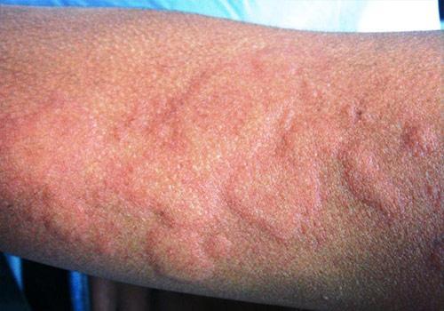 Высыпания на коже: фото и описание