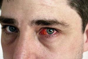 Чем лечить конъюнктивит у взрослого: симптомы, виды, препараты