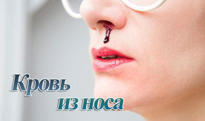 Почему идет кровь из носа и как её остановить