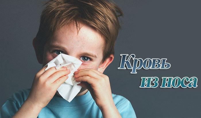 Почему у ребенка идет кровь из носа, как остановить
