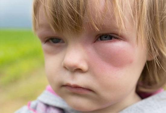 Отек Квинке: первая помощь, лечение у взрослых и детей