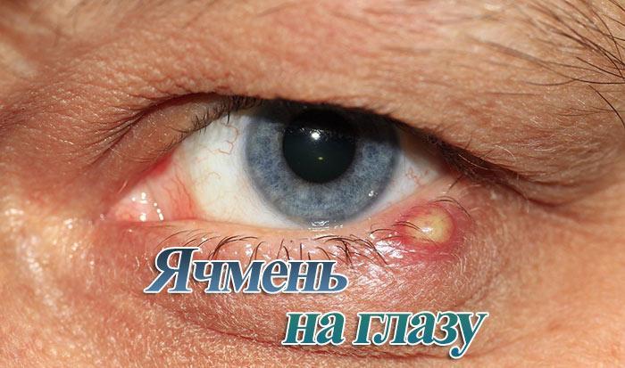Ячмень на глазу: причины появления, лечение, профилактика