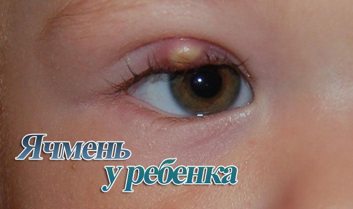 Ячмень на глазу у ребенка: как лечить быстро дома