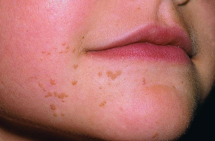 Вирус папилломы человека у женщин: что это такое, симптомы и лечение