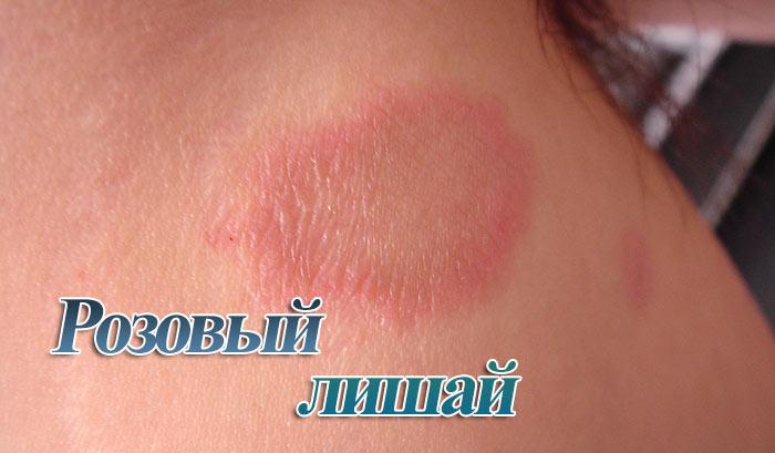 Розовый лишай у человека: причины возникновения, лечение, фото