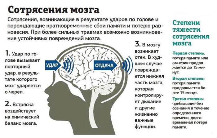 Что делать при сотрясении мозга в домашних условиях