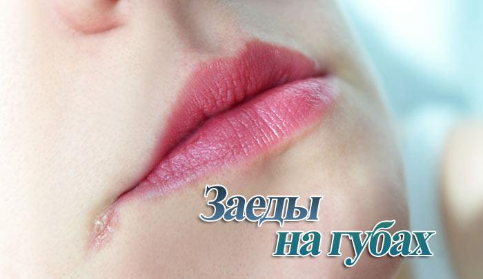 Заеды в уголках рта: причины образования и лечение