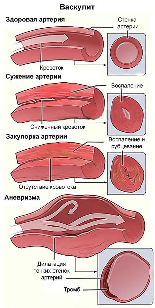 Васкулит на ногах: лечение, симптомы и признаки